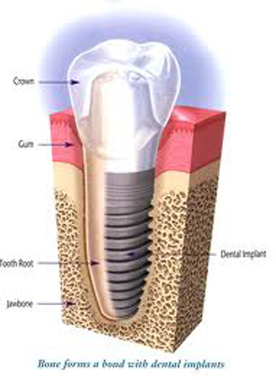 Cosmetic Dental Implant Restoration